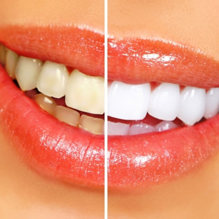 How are teeth shades determined, and how do I get whiter teeth?