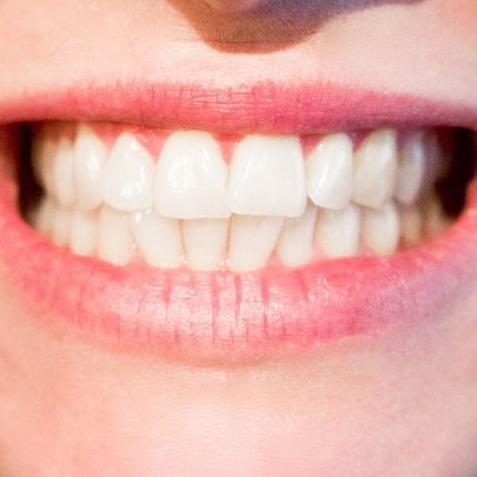 What Are My Choices for at Home Tooth Whitening?