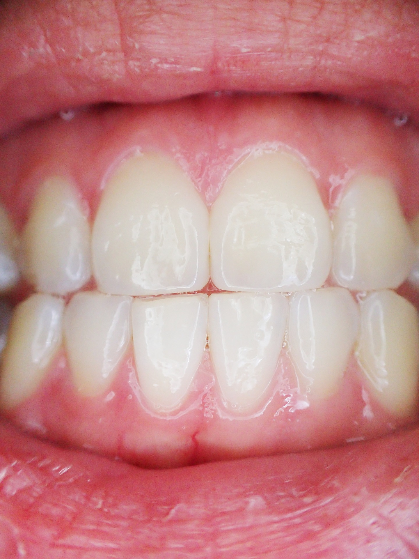 Gum Diseases and Issues Experienced with the Gums