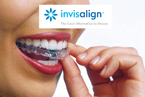 When will Invisalign invisible braces be right for me?