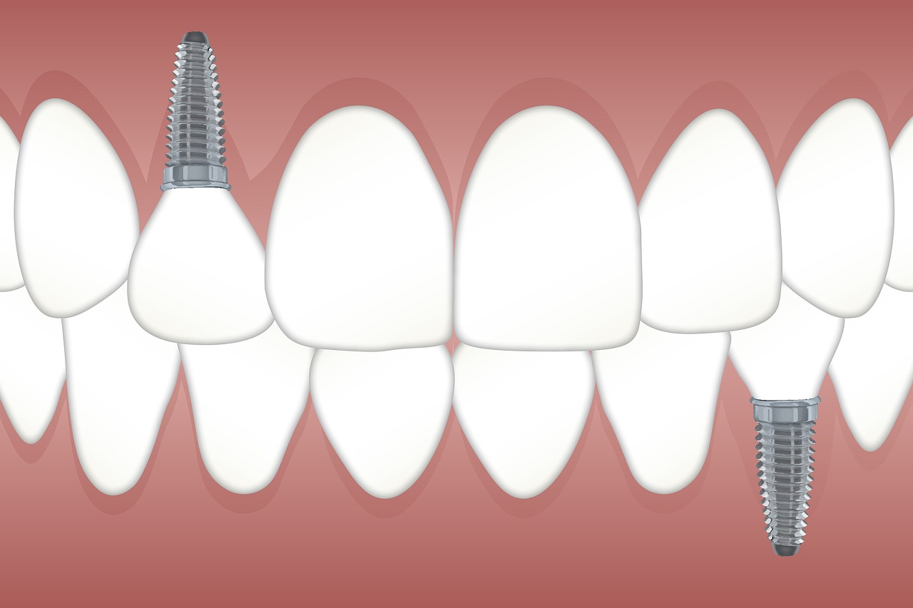 Are dental implants the right choice for me?