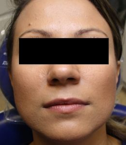 facial aesthetics pulborough