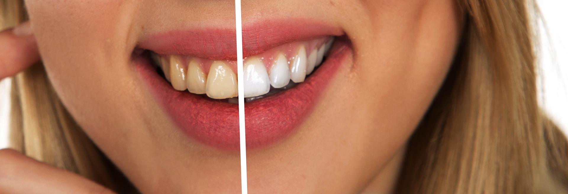 £200 OFF Teeth Whitening –  RRP £480